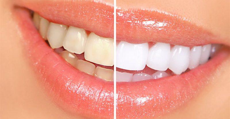 diş beyazlığı
